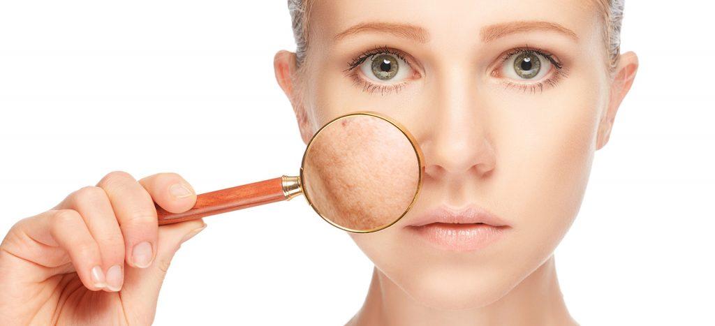 neem face pack - treats skin pigmentation