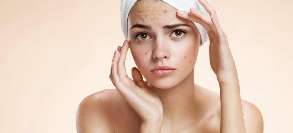 acne skin problem