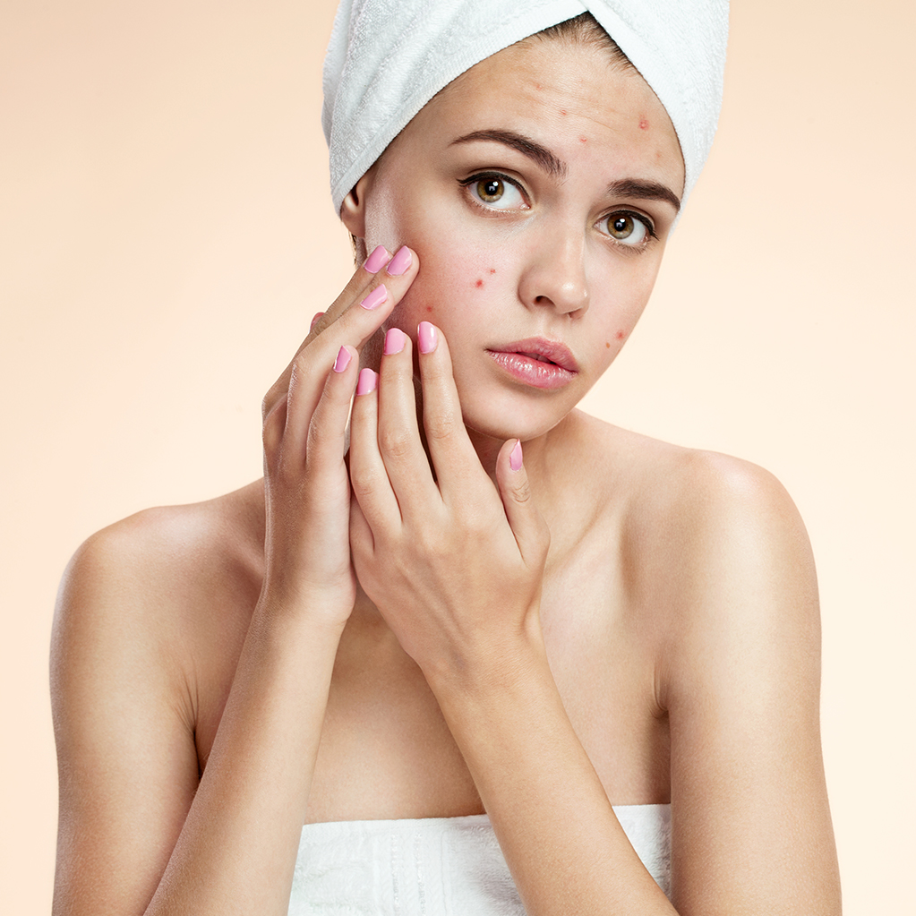 5 Skin Care Tips To Control Acne